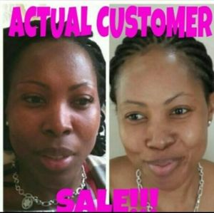 Actual results... Kojic acid lightening soap